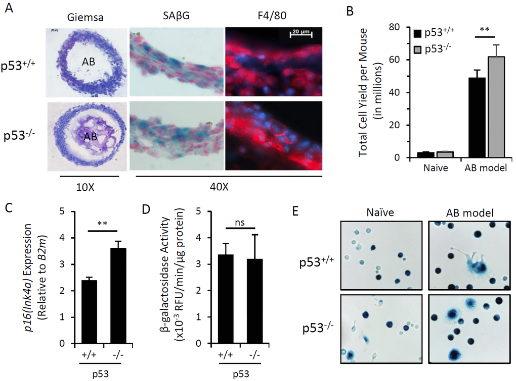 Induction of p16Ink4a and SAβG in macrophages does not require p53. Peritoneal lavage and alginate beads containing SCs (AB) were recovered from wild type (p53+/+) or p53 knockout (p53-/-) mice 15 days after injection (AB model). (A) Representative microphotographs of cryosectioned immunocyte capsules surrounding alginate beads stained with May-Grünwald-Giemsa for histology (10x objective), X-Gal substrate for β-galactosidase activity (SAβG; pH 6.0) (blue) with nuclear fast red counterstain (red), and an immunofluorescent antibody against macrophage marker F4/80 (red) with DAPI nuclear counterstain (blue) (40x objective). (B) Total yield of cells recovered from peritoneal lavage from naïve or AB-injected p53+/+ and p53-/- mouse strains. (C) AB model-elicited immunocyte capsules were pooled equally from 3 mice and p16Ink4a gene expression relative to internal reference gene β2-microglobulin (B2m) was measured by qPCR. (D) β-galactosidase activity from cell extracts of immunocyte capsules from alginate beads recovered from individual mice was measured via 4-MUG hydrolysis, presented as the rate of 4-MU fluorescence (RFU) per minute normalized per microgram of protein. (E) Representative microphotograph of adherence-selected peritoneal lavage from naïve and AB-injected mice stained with X-Gal for SAβG activity. Data show mean ± standard deviation of two independent experiments (n=3 mice per experiment). Statistical comparison between p53+/+ and p53-/- strains are indicated; ns, not significant; **, p-value