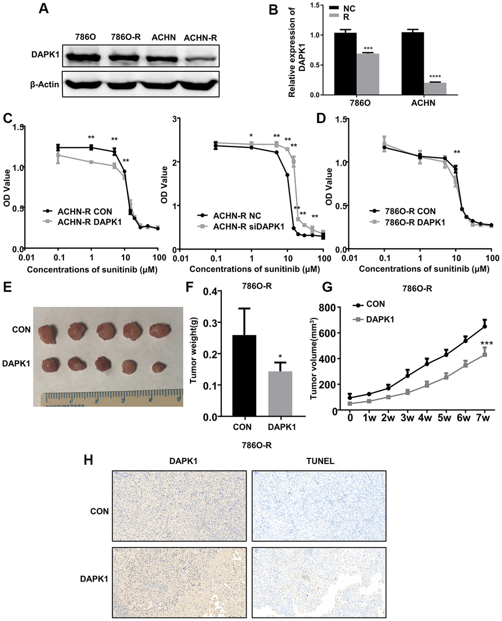 DAPK1 overexpression in the sunitinib-resistant ccRCC cells reduces the growth of xenograft tumors in the nude mice model. (A, B) Western blot analysis shows DAPK1 protein expression in parental (786-O and ACHN) and sunitinib-resistant (786O-R and ACHN-R) ccRCC cells. GAPDH is used as internal control. (C) CCK-8 assay results show the growth rate of control-ACHN-R, DAPK1-overexpressing ACHN-R, and DAPK1-knockdown ACHN-R cells that are treated with different concentrations of sunitinib. (D) CCK-8 assay results show the growth rate of control and DAPK1 overexpressing 786O-R cells that are treated with different concentrations of sunitinib. The picture (E), average weight (F) and volume (G) of the tumors obtained after 7 weeks of transplanting control and DAPK1 overexpressing 786O-R cells in the nude mice. (H) Immunohistochemical analysis of the xenograft tumors obtained by subcutaneously transplanting control and DAPK1 overexpressing 786O-R cells in nude mice. The bar graphs show the statistical analysis of three independent experiments. Note: The data are shown as means ± SEM. ***p