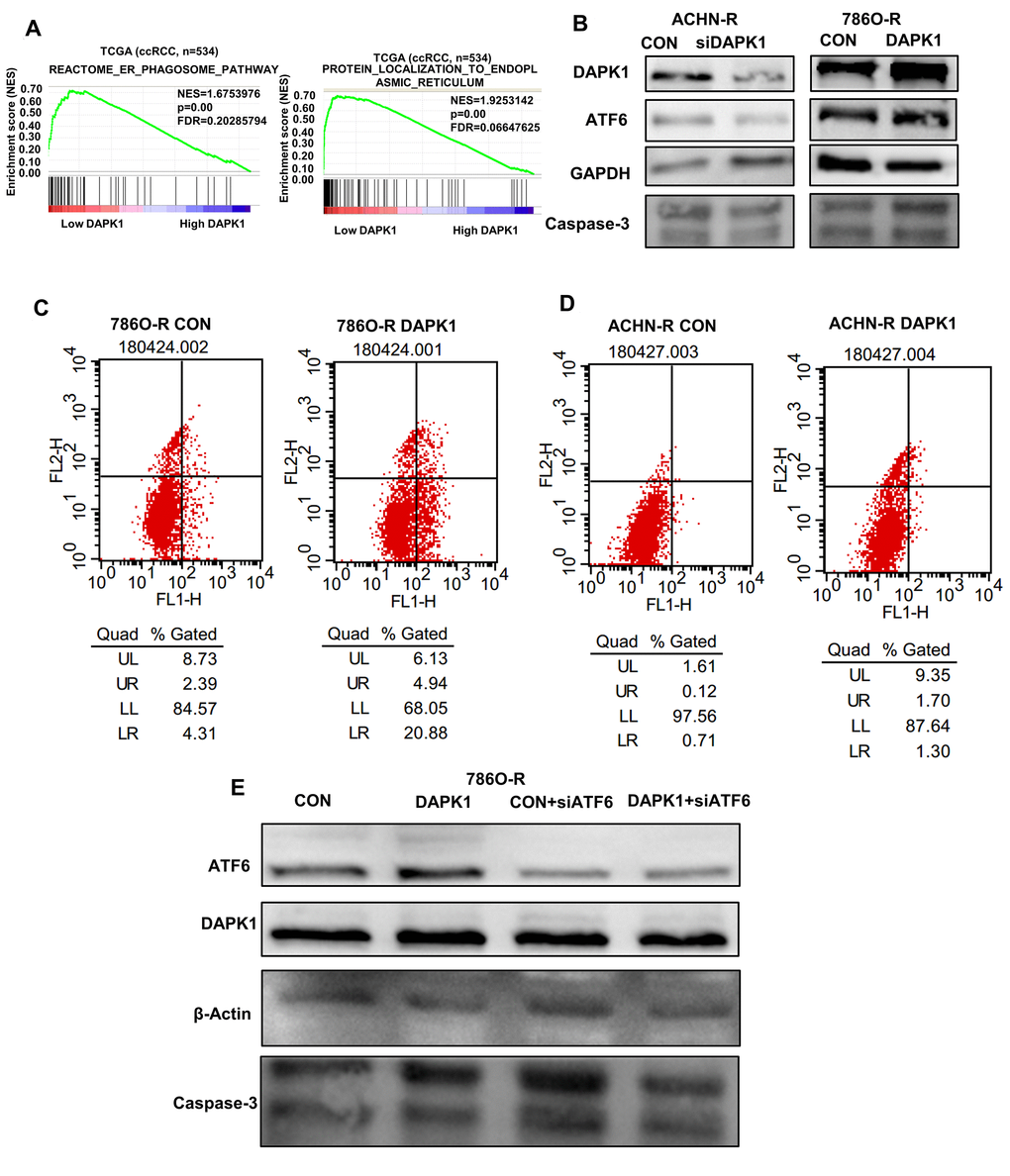 DAPK1 regulates endoplasmic reticulum stress-mediated apoptosis. (A) GSEA shows that DAPK1 expression correlates with reactome
