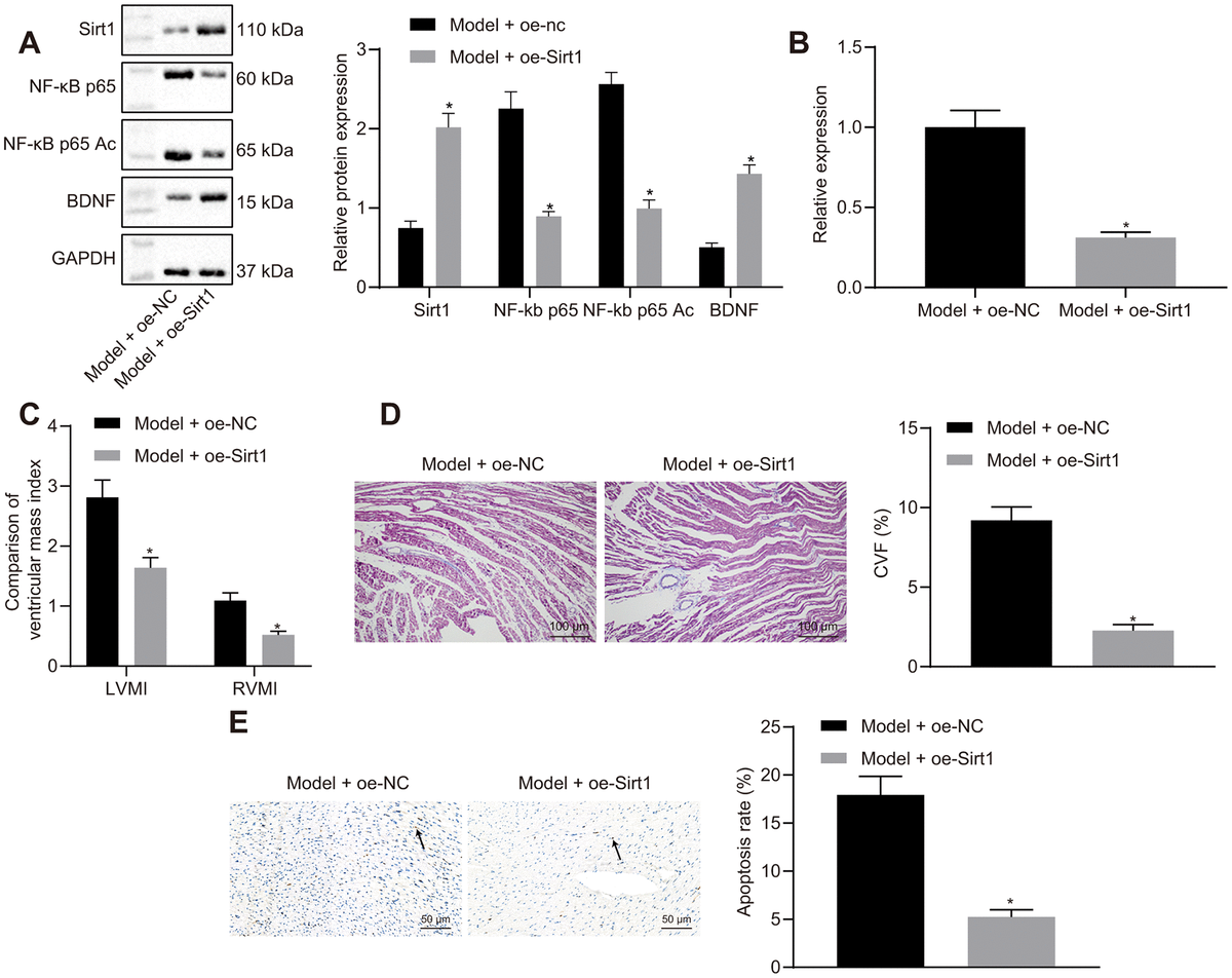 Effects of Sirt1 overexpression on heart failure in vivo. (A) Sirt1, NF-κB p65, NF-κB p65 Ac and BDNF protein expression; (B) miR-155 expression; (C) Ventricular mass index; (D) CVF determined by Masson's trichrome staining (100 ×); (E) Apoptosis determined by TUNEL assay (200 ×); *p
