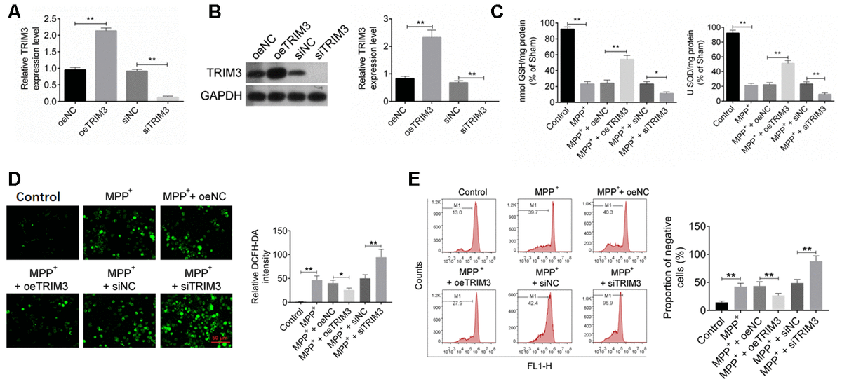 TRIM3 relieved oxidative stress in PD cell model. (A and B) TRIM3 mRNA and protein expression in SH-SY5Y cells was successfully regulated by transfection. (C) TRIM3 significantly elevated the level of GSH and SOD in SH-SY5Y cells induced by MPP+ solution. (D) TRIM3 markedly reduced the level of ROS in SH-SY5Y cells induced by MPP+ solution. (E) TRIM3 prominently decreased the MMP in SH-SY5Y cells induced by MPP+ solution. * P P