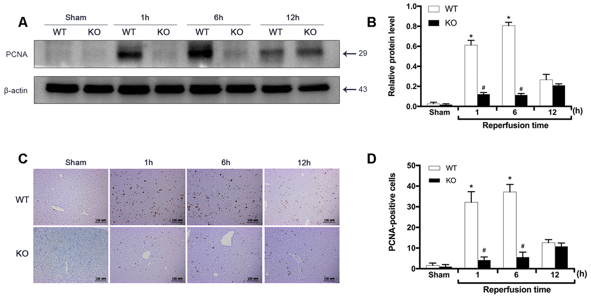 ARRB2 promotes liver proliferation during hepatic ischemia-reperfusion. (A) and (B), PCNA protein level in liver tissue detected by Western Blotting in Sham, WT + IR and KO + IR groups. (C) and (D), Immunohistochemical staining of PCNA in liver tissues (×200). The data are presented as the Mean ± SD, n = 6. *P#P