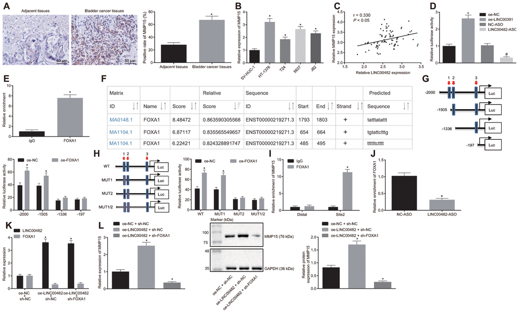 LINC00482 up-regulates the expression of MMP15 by recruiting FOXA1. (A) MMP15 expression in bladder cancer and adjacent normal tissues detected by immunohistochemistry (× 200), * p vs. adjacent normal tissues; (B) Expression of MMP15 in 4 kinds of bladder cancer cells and SV-HUC-1 cell detected by RT-qPCR; * p vs. SV-HUC-1 cell; (C) The correlation between LINC00482 and MMP15 expression in the bladder cancer tissues analyzed by Pearson correlation coefficient; (D) Dual-luciferase reporter gene assay was used to study the effect of LINC00482 on the activity of MMP15 promoter, * p vs. the oe-NC group, # p vs. the NC-ASO group; (E) The interaction between LINC00482 and FOXA1 verified by RIP assay, * p vs. the IgG group; (F) FOXA1 protein might combine the three sites of MMP15 promoter region by online analysis; (G) The truncated MMP15 recombinant luciferase reporter vector co-transfected with FOXA1 expression vector into HT-1376 cells for dual-luciferase reporter assay, * p vs. the oe-NC group; (H) the mutated MMP15 recombinant luciferase reporter vector co-transfected with FOXA1 expression vector into HT-1376 cells for dual-luciferase reporter assay, * p vs. the oe-NC group; (I) Enrichment of FOXA1 at site 2 in MMP15 promoter region analyzed by ChIP assay, * p vs. the IgG group; (J) Enrichment FOXA1 on MMP15 after silencing LINC00482 in HT-1376 cells detected by ChIP assay, * p vs. the NC-ASO group; (K) Transfection efficiency of LINC00482 and FOXA1 in each group by RT-qPCR, * p vs. cells treated with oe-NC + sh-NC; (L) The expression of MMP15 after treatment of oe-LINC00482 and sh-FOXA1 detected by RT-qPCR and Western blot analysis, * p vs. cells treated with oe-NC + sh-NC. The measurement data were presented as mean ± standard deviations. Paired t-test was used for intra-group comparison, while differences between two groups were compared by unpaired t test. Comparisons among multiple groups were analyzed by one-way analysis of variance, followed by Tukey's post-hoc test. Experiments were repeated three times.