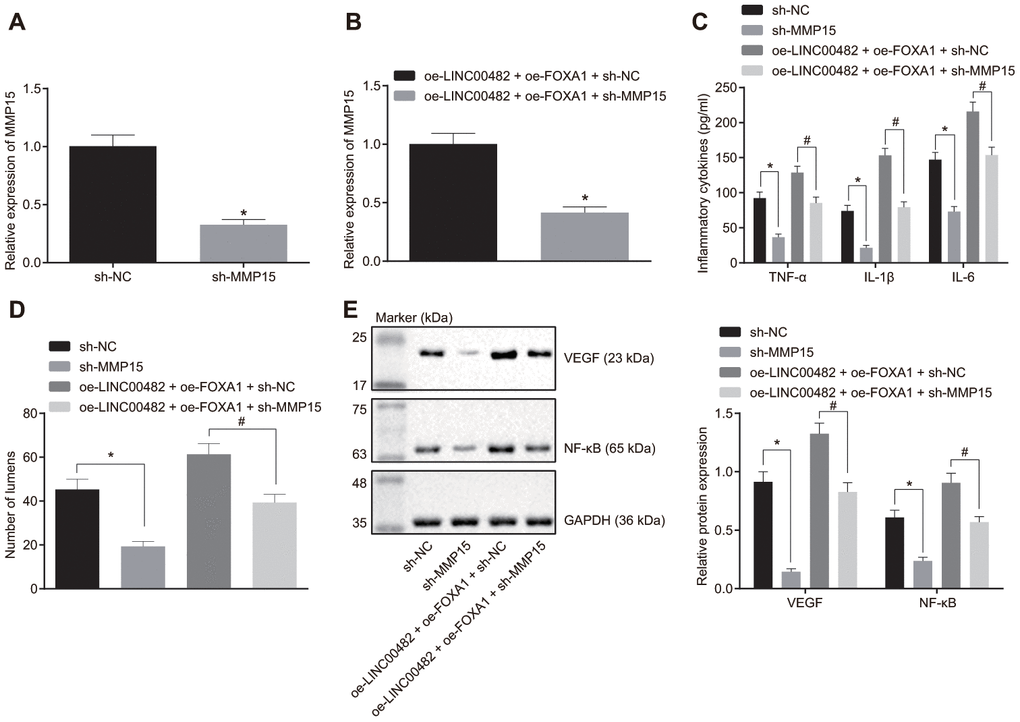 Silencing LINC00482 inhibits inflammation and angiogenesis through down-regulation of MMP-15 by targeting FOXA1. (A) The interference efficiency of MMP15 confirmed by RT-qPCR after treatment of sh-MMP15, * p vs. cells treated with sh-NC; (B) The interference efficiency of MMP15 confirmed by RT-qPCR after treatment of oe-LINC00482 + oe-FOXA1 + sh-MMP15, * p vs. cells treated with oe-LINC00482 + oe-FOXA1 + sh-NC; (C) Expression levels of TNF-α, IL-1β, IL-6 tested by ELISA, * p vs. cells treated with sh-NC, # p vs. cells treated with oe-LINC00482 + oe-FOXA1 + sh-NC; (D) The tube formation ability after treatment of sh-MMP15, oe-LINC00482 or oe-FOXA1 in each group, * p vs. cells treated with sh-NC, # p vs. cells treated with oe-LINC00482 + oe-FOXA1 + sh-NC; (E) Expressions of VEGF and NF-κB detected by Western blot analysis, * p vs. cells treated with sh-NC, # p vs. cells treated with oe-LINC00482 + oe-FOXA1 + sh-NC. The measurement data were presented as mean ± standard deviations. The differences between two groups were compared by unpaired t test. Experiments were repeated three times.