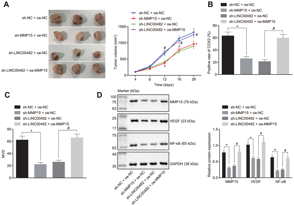 Silencing LINC00482 suppresses progression of bladder cancer in vivo. (A) Tumor volume in each group after injection of sh-MMP15, sh-LINC00482 and oe-MMP15; (B) immunohistochemistry of COX-2; (C) immunohistochemistry of MVD; (D) the expression of MMP15, VEGF, and NF-κB detected by Western blot analysis. The measurement data were presented as mean ± standard deviations, n = 8. Differences between two groups were compared by unpaired t test. Repeated measurement analysis of variance was used to compare the proliferation ability at different time points, and Tukey's was used for post-hoc tests. * p vs. the sh-NC + oe-NC group; # p vs. the sh-LINC00482 + oe-NC group.
