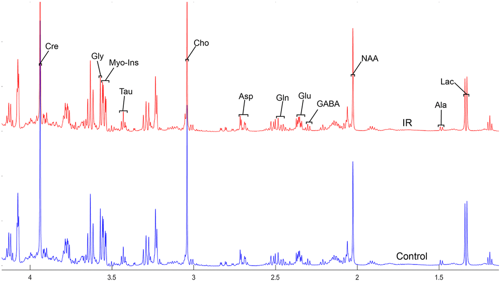 The normalized 1H NMR spectra of extracts in the parietal cortex after MIRI.