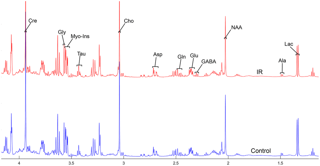 The normalized 1H NMR spectra of extracts in the thalamus after MIRI.