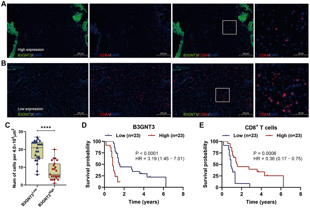 Multi-color immunofluorescence to investigate the relationship between B3GNT3 expression and CD8+ T cells infiltration in PC. (A) High B3GNT3 expression in multi-color immunofluorescence. (B) Low B3GNT3 expression in multi-color immunofluorescence. (C) High B3GNT3 expression group displayed a significant increased CD8+ T cells infiltration compared to low B3GNT3 expression group. (D) Patients with higher B3GNT3 expression had significant shorter OS that those with lower B3GNT3 expression. (E) Patients with higher CD8+ T cells infiltration had superior OS than those with lower CD8+ T cells infiltration.