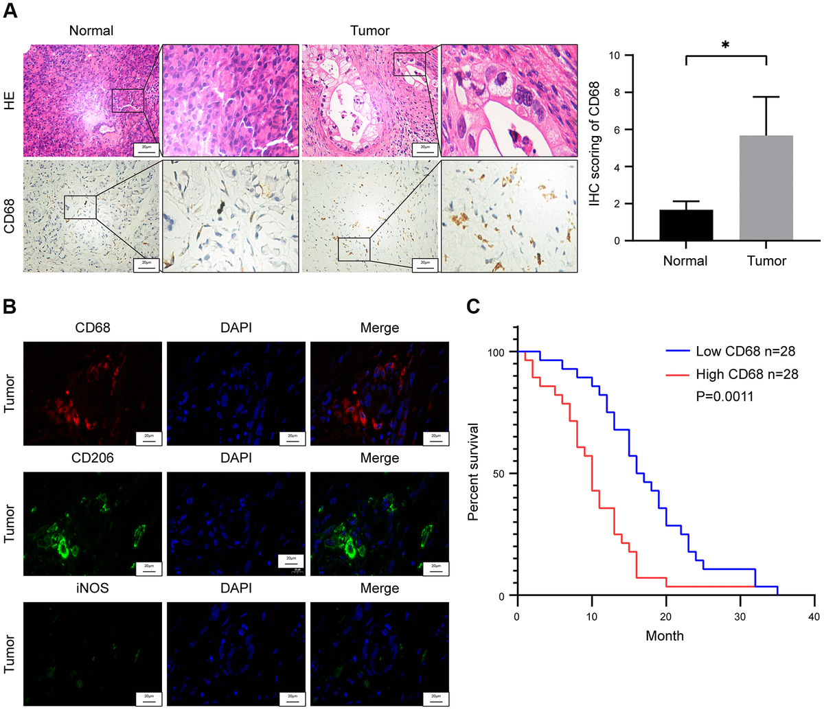 Tumor-associated macrophage (TAM) density correlates with survival outcomes in pancreatic ductal adenocarcinoma (PDAC) patients. (A) Representative images show hematoxylin and eosin (H&E) and CD68 stained PDAC and adjacent normal pancreatic tissues. Note: n = 3; Scale bar = 20 μm; *P B) Representative fluorescence staining images show CD68, iNOS and CD206 expression in PDAC and adjacent normal pancreatic tissues. Scale bar = 20 μm. (C) Kaplan-Meier survival curve analysis shows overall survival rates of CD68-high (n = 28) and CD68-low (n = 28) expressing PDAC patients from Ruijin Hospital (log-rank test: P