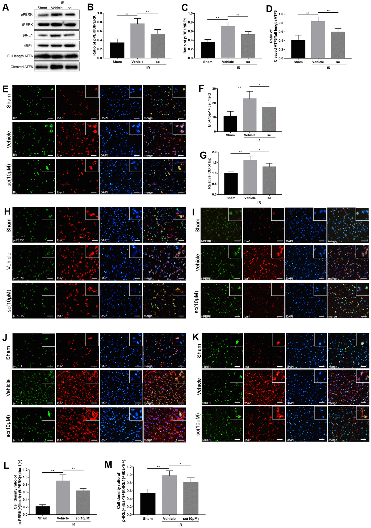 Microglial endoplasmic reticulum (ER) stress was mitigated by PTP1B inhibitor treatment after cerebral ischemia/reperfusion (IR) injury in rats. (A) Western blot to detect the effect of PTP1B inhibitor (10 μM) on phospho-PERK, total-PERK, phospho-IRE1, total-IRE1, cleaved ATF6, and full length ATF6 protein expression in the rat ipsilateral cortex 24 h after IR injury (n = 5 per group). (B–D) Quantitative analysis of band density ratio of phosphor-PERK/total-PERK, phospho-IRE1/total-IRE1, and cleaved ATF6/full length ATF6. Results are presented as the mean ± SEM (n = 4 per group). (E) Double immunofluorescence to detect Bip expression in microglia (Iba-1) 24 h after IR injury. Scale bar = 50 μm. (F, G) Quantitative analysis of Bip+/Iba-1+ cell density and relative integrated optical density (IOD) of Bip in the ipsilateral cerebral cortex (presented as the mean ± SEM, n = 5 per group). (H–K) Double immunofluorescence to detect phospho-PERK, PERK, phospho-IRE1, and IRE1 expression in microglia (Iba-1) 24 h after IR injury. Scale bar = 50 μm. (L, M) Quantitative analysis of double-positive cell density ratio of p-PERK(+)Iba-1(+)/PERK(+)/Iba-1(+) and p-IRE1(+)Iba-1(+)/IRE1(+)Iba-1(+) in the ipsilateral cerebral cortex (presented as the mean ± SEM, n = 6 per group). *p p p