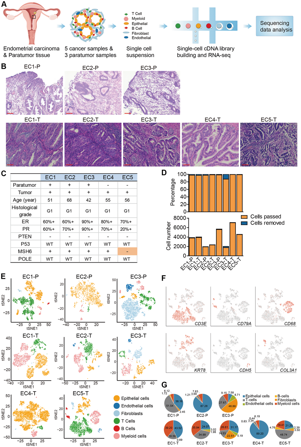 Diversity of cell types in each sample from ECC patients delineated by single-cell transcriptomic analysis. (A) Experimental workflow of scRNA-seq procedure for ECC tumors and paratumor tissues. (B) Hematoxylin and eosin (HE) staining on paratumor and tumor slides of the 5 ECC patients. Scale bars, 100 mm. (C) Samples obtained from 5 EC patients and clinicopathological characteristics of the 5 patients, more details are provided in Supplementary Figure 1B. (D) The remaining cell fraction (left bar plot) and cell number (right bar plot) after quality control and filtering step for each biopsy. (E) The t-distributed stochastic neighbor embedding (t-SNE) plot demonstrates the major cell types in each sample. (F) Expression of representative marker genes of the major cell types defined in EC samples. (G) The percentage of cell types assigned to each sample in (E). Pie charts of cell-type fractions for tumor-infiltrating immune cells of each patient, colored by cell type.