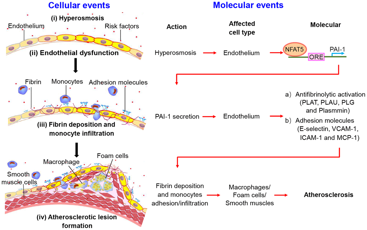 The schematic diagram shows the process of fibrin deposition, macrophage infiltration and atherosclerosis formation. Stage I: Hypertonicity → NFAT5-dependent PAI-1 gene transcription → PAI-1 secretion. Stage II: PAI-1 secretion → Antifibrinolytic activation/adhesive molecules → Fibrin deposition/monocytes adhesion and infiltration. Stage III: Endothelial dysfunction leads to fibrin deposition, macrophage-driven foam cells and phenotype conversion of smooth muscle cells, contributing to the formation of atherosclerotic plaque.