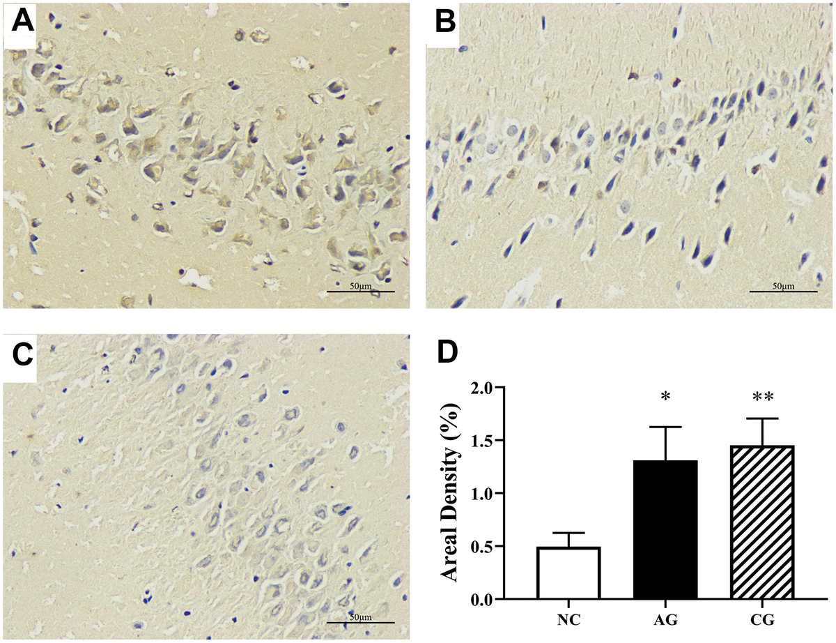 Hippocampal immunohistochemical analysis of the negative control group (A), the aging group (B) and the constipation group (C) under an optical microscopy (400 × magnification) and their semi-quantification (D). Data were presented as the mean ± S.E. (n=3).